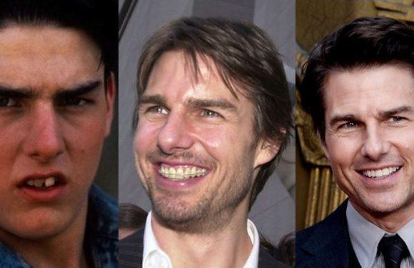 Знаменитости, которым брекеты помогли изменить улыбку