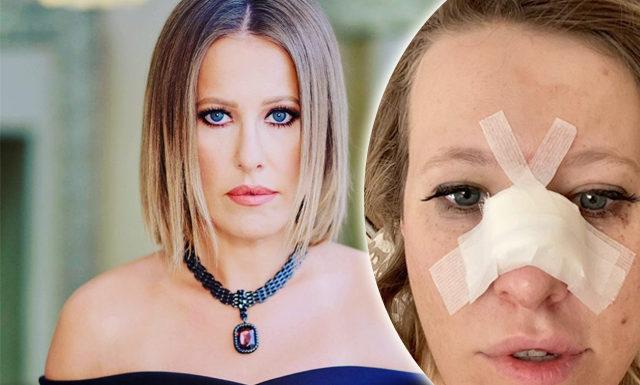 Ксения Собчак попала в больницу с переломом носа